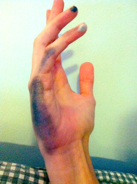 This is what happens to your hand when you draw a lot.